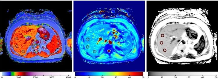 MRI scans of liver for diagnosis using Perspectum Diagnostics LiverMultiScan